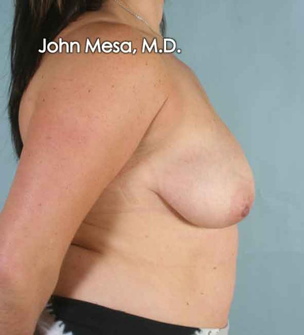 Breast Augmentation and Lift Gallery - Patient 6371447 - Image 3