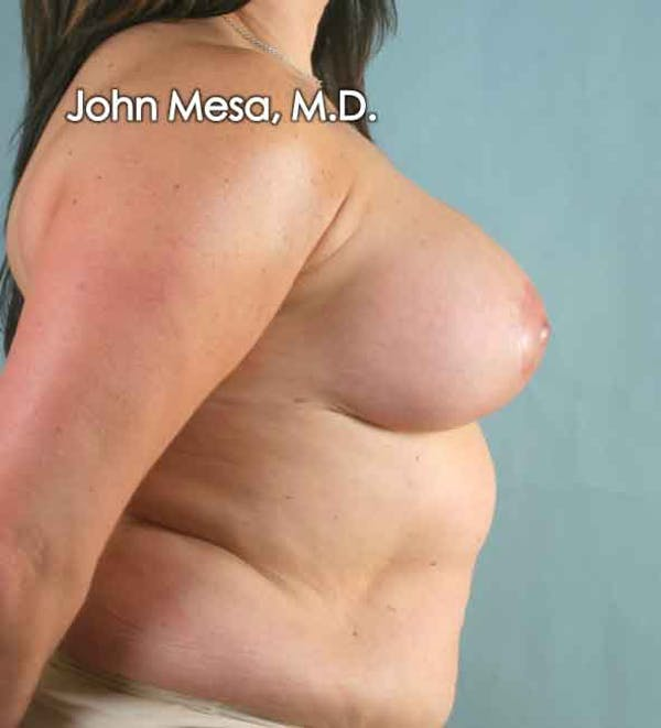 Breast Augmentation and Lift Gallery - Patient 6371447 - Image 4