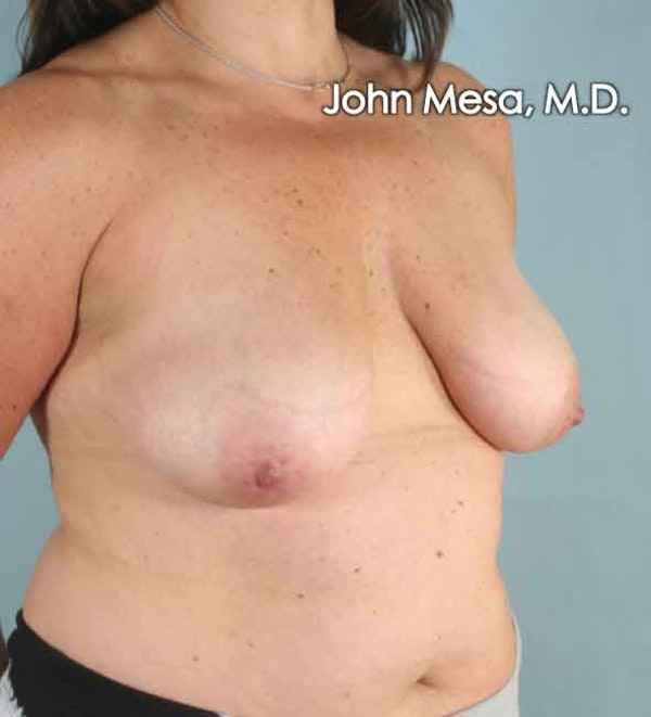 Breast Augmentation and Lift Gallery - Patient 6371447 - Image 5