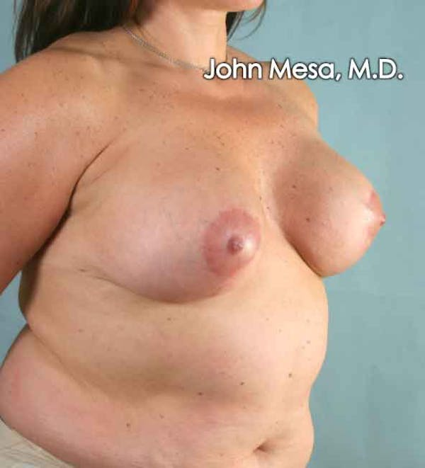 Breast Augmentation and Lift Gallery - Patient 6371447 - Image 6