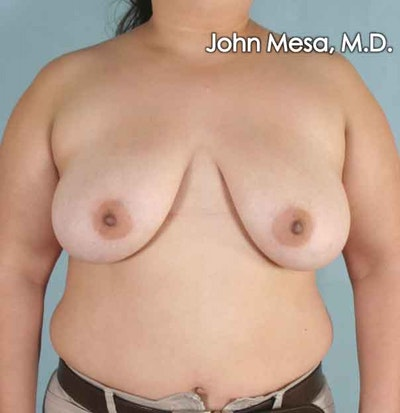 Breast Lift Gallery - Patient 6371451 - Image 1