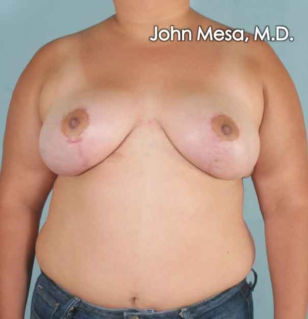 Breast Lift Gallery - Patient 6371451 - Image 2