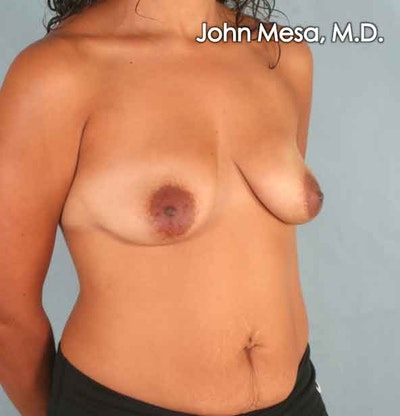 Breast Augmentation and Lift Gallery - Patient 6371450 - Image 1