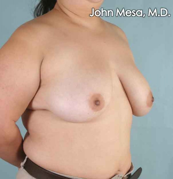 Breast Lift Gallery - Patient 6371451 - Image 3