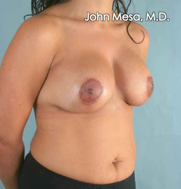 Breast Augmentation and Lift Gallery - Patient 6371450 - Image 2