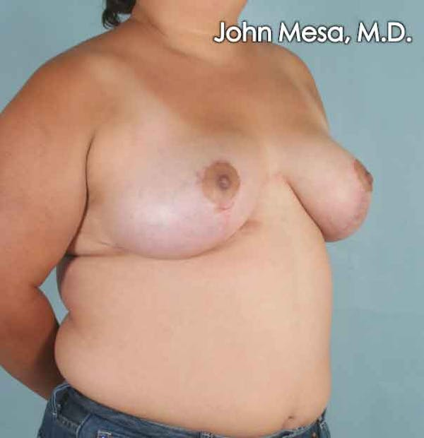 Breast Lift Gallery - Patient 6371451 - Image 4