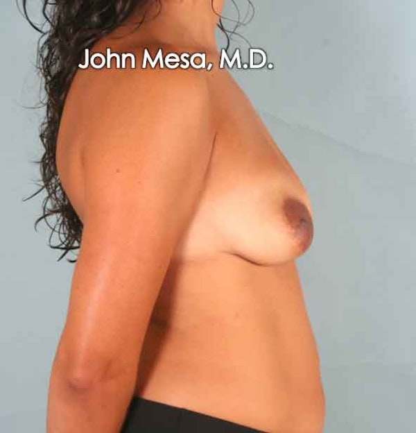 Breast Augmentation and Lift Gallery - Patient 6371450 - Image 3