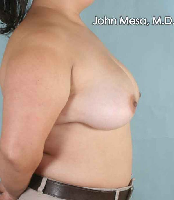 Breast Lift Gallery - Patient 6371451 - Image 5