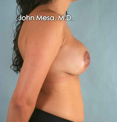 Breast Augmentation and Lift Gallery - Patient 6371450 - Image 4