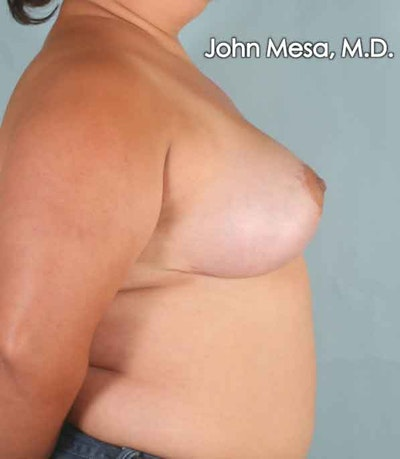 Breast Lift Gallery - Patient 6371451 - Image 6
