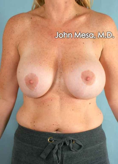 Breast Augmentation and Lift Gallery - Patient 6371457 - Image 1