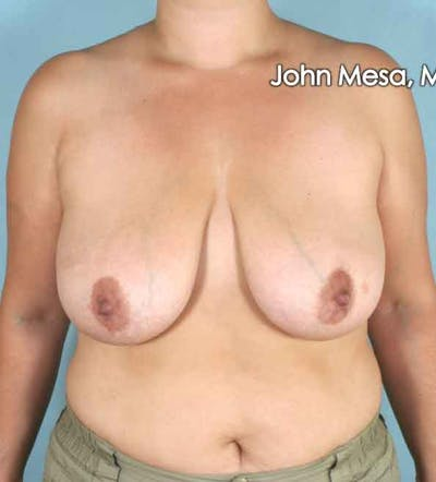 Breast Lift Gallery - Patient 6371458 - Image 2