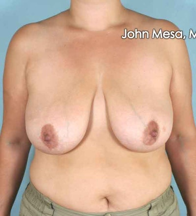 Breast Lift Gallery - Patient 6371458 - Image 1