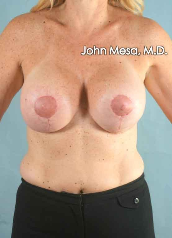 Breast Augmentation and Lift Gallery - Patient 6371457 - Image 2