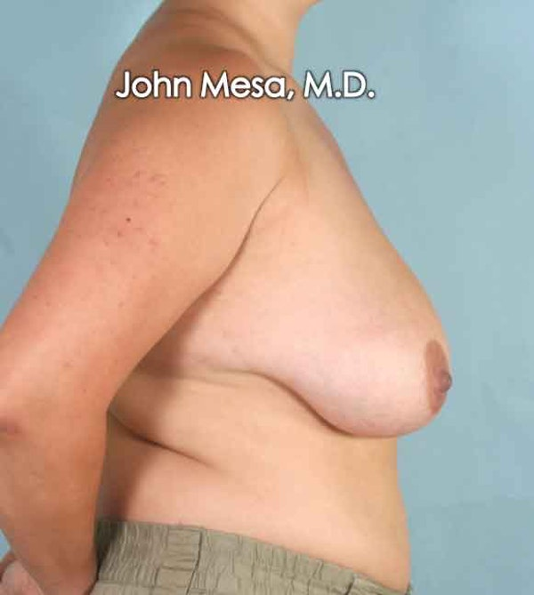 Breast Lift Gallery - Patient 6371458 - Image 3