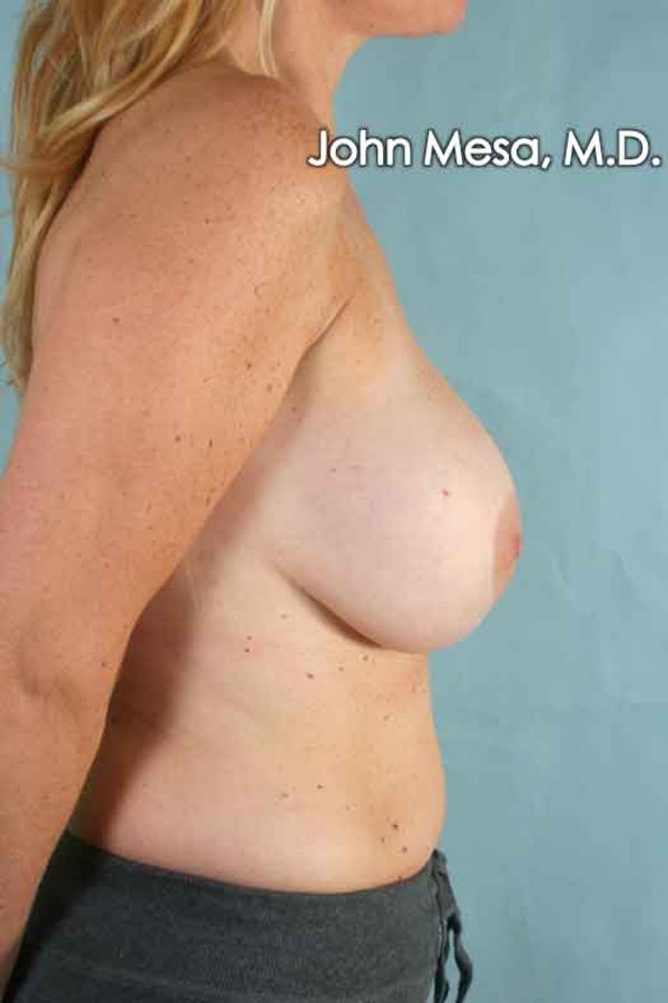 Breast Augmentation and Lift Gallery - Patient 6371457 - Image 3