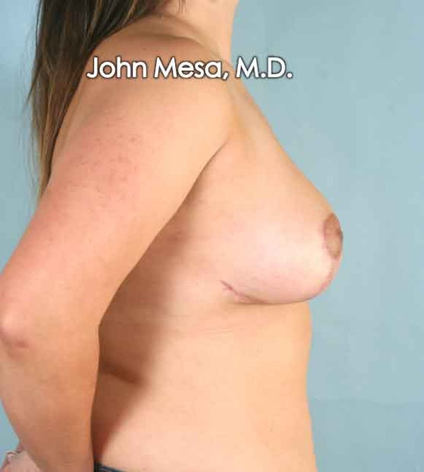 Breast Lift Gallery - Patient 6371458 - Image 4