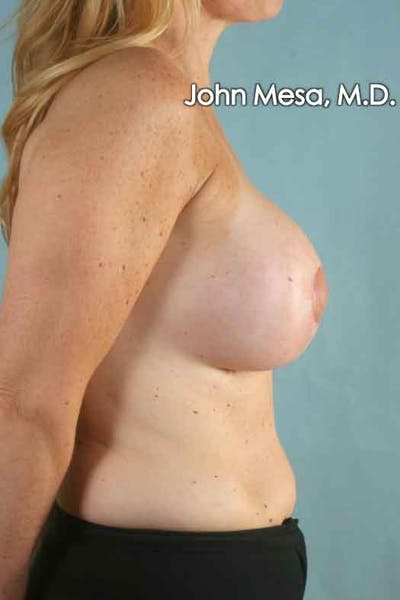 Breast Augmentation and Lift Gallery - Patient 6371457 - Image 4
