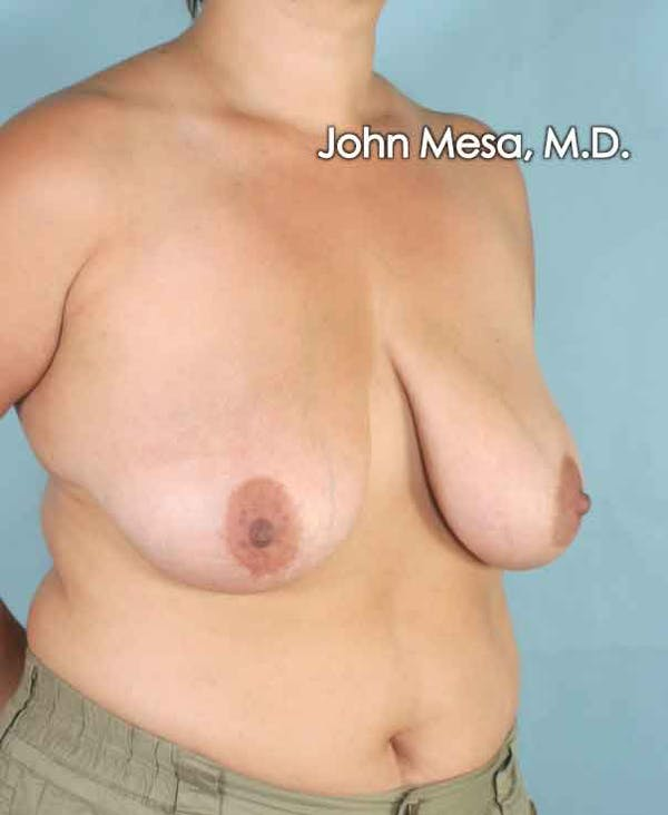 Breast Lift Gallery - Patient 6371458 - Image 5