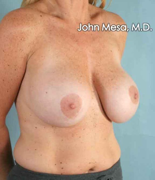 Breast Augmentation and Lift Gallery - Patient 6371457 - Image 5
