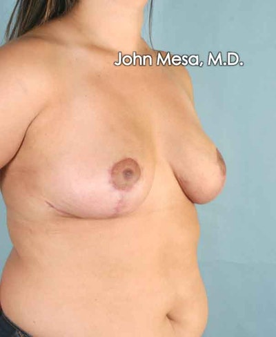 Breast Lift Gallery - Patient 6371458 - Image 6