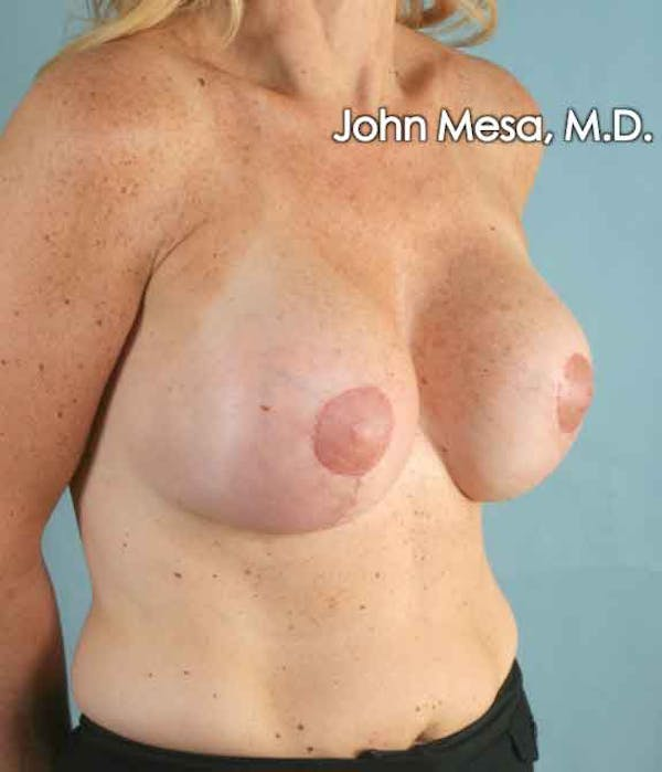 Breast Augmentation and Lift Gallery - Patient 6371457 - Image 6