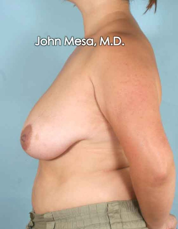 Breast Lift Gallery - Patient 6371458 - Image 7