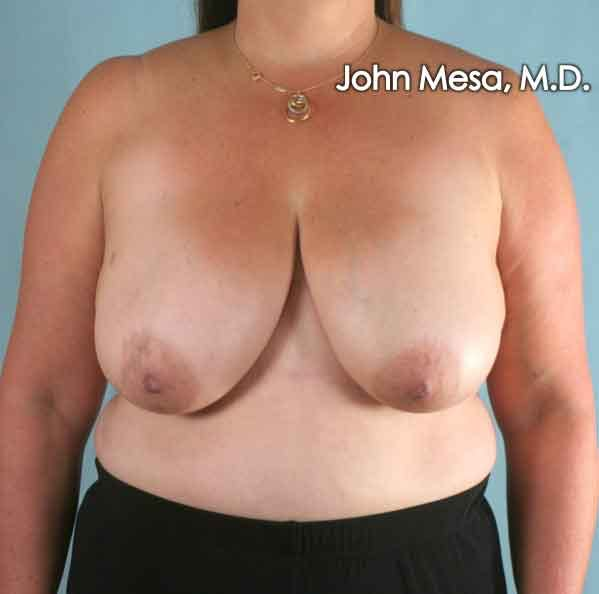Breast Reduction Gallery - Patient 6371459 - Image 1