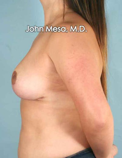 Breast Lift Gallery - Patient 6371458 - Image 8