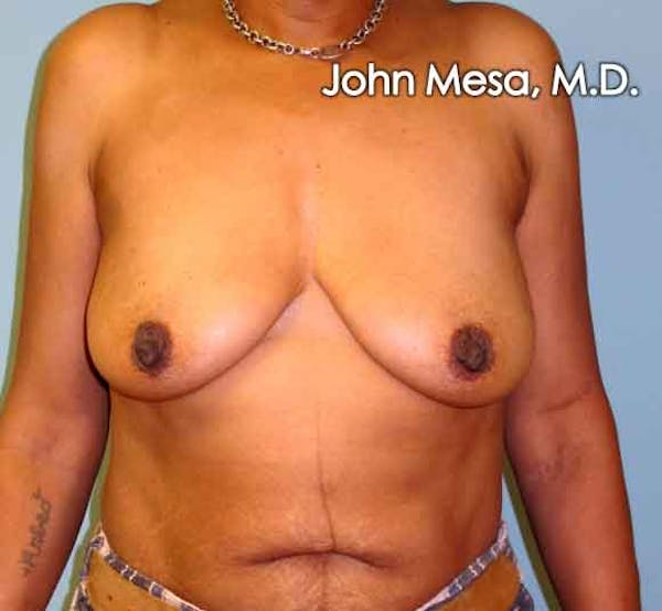 Breast Augmentation and Lift Gallery - Patient 6371460 - Image 1