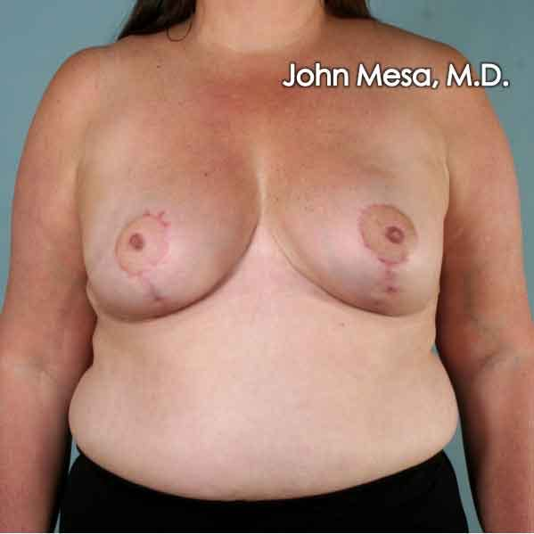 Breast Reduction Gallery - Patient 6371459 - Image 2