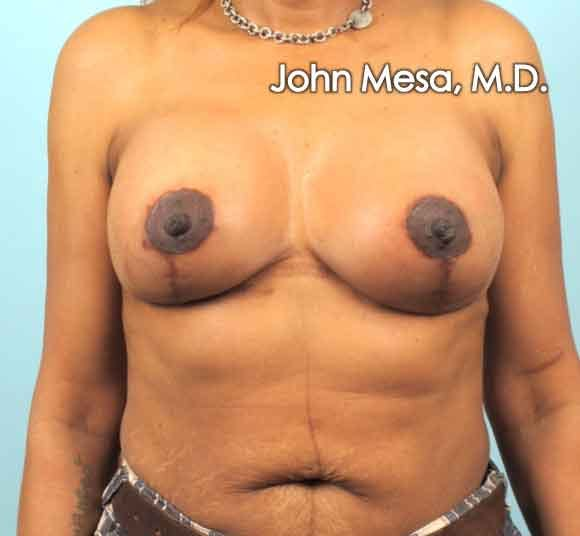 Breast Augmentation and Lift Gallery - Patient 6371460 - Image 2