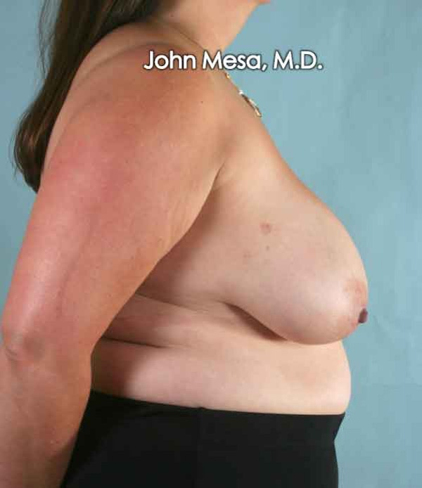 Breast Reduction Gallery - Patient 6371459 - Image 3