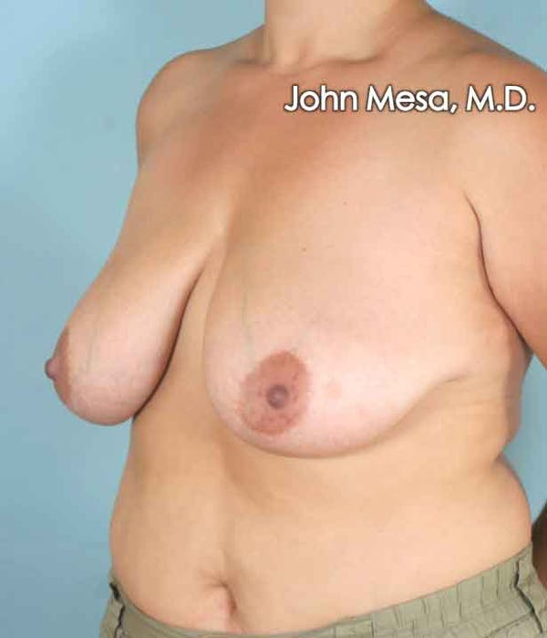 Breast Lift Gallery - Patient 6371458 - Image 9