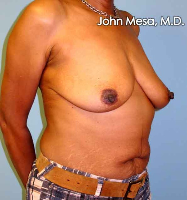 Breast Augmentation and Lift Gallery - Patient 6371460 - Image 3