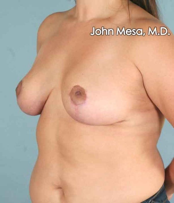 Breast Lift Gallery - Patient 6371458 - Image 10