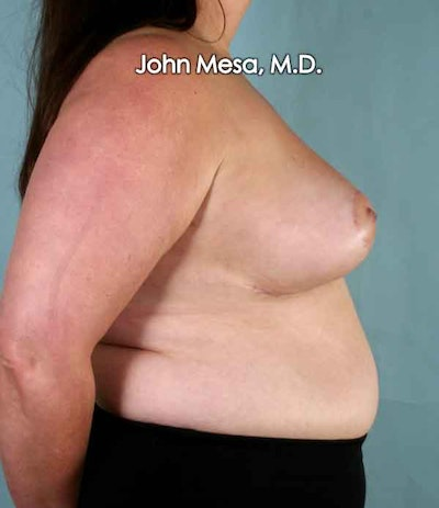 Breast Reduction Gallery - Patient 6371459 - Image 4
