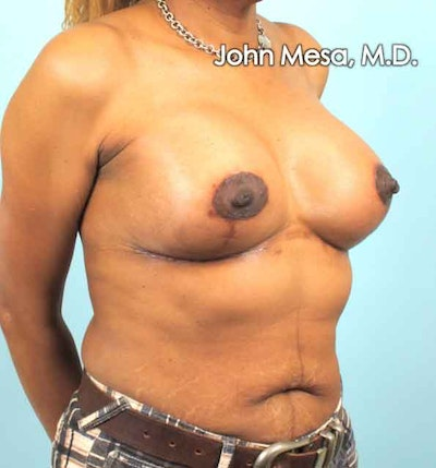 Breast Augmentation and Lift Gallery - Patient 6371460 - Image 4