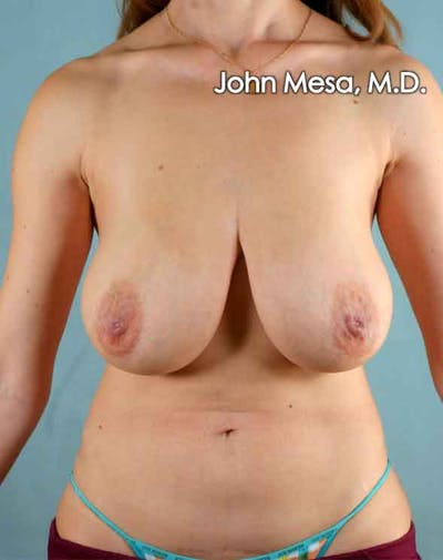 Breast Lift Gallery - Patient 6371461 - Image 1