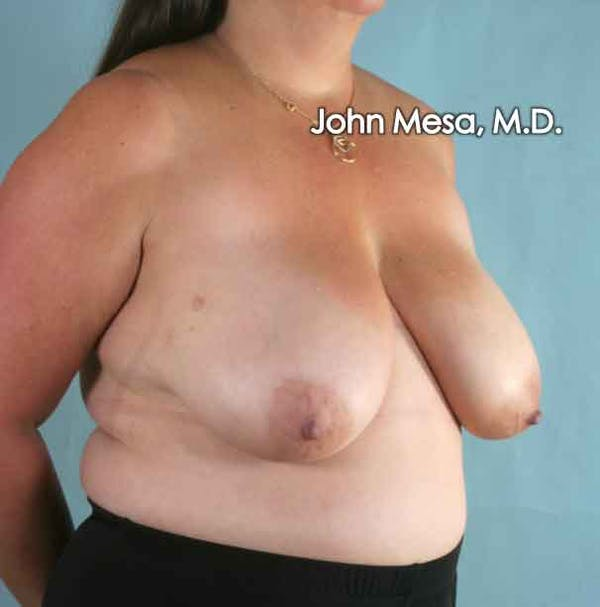 Breast Reduction Gallery - Patient 6371459 - Image 5