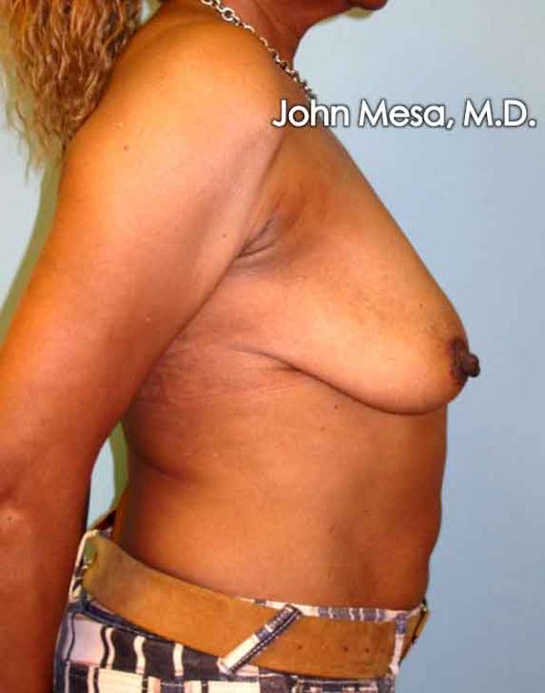 Breast Augmentation and Lift Gallery - Patient 6371460 - Image 5