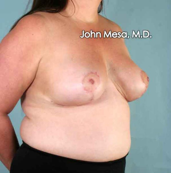 Breast Reduction Gallery - Patient 6371459 - Image 6