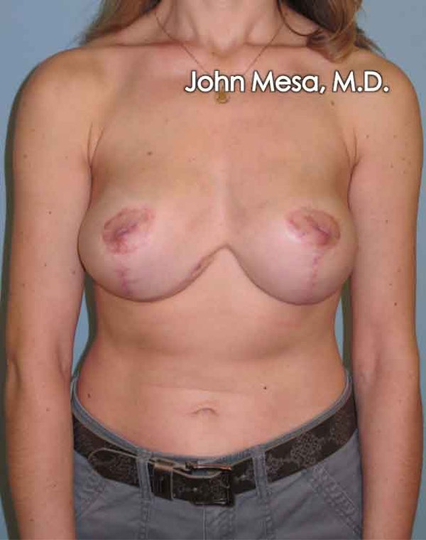 Breast Lift Gallery - Patient 6371461 - Image 2