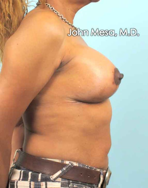Breast Augmentation and Lift Gallery - Patient 6371460 - Image 6