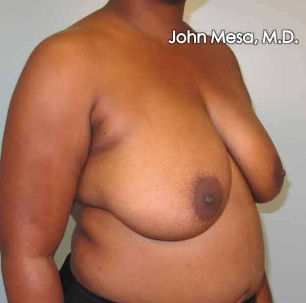 Breast Reduction Gallery - Patient 6371462 - Image 1