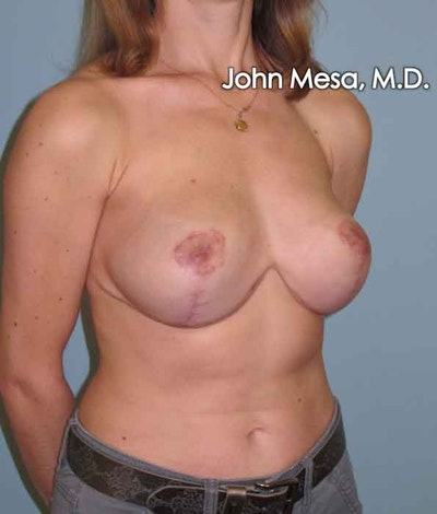 Breast Lift Gallery - Patient 6371461 - Image 4