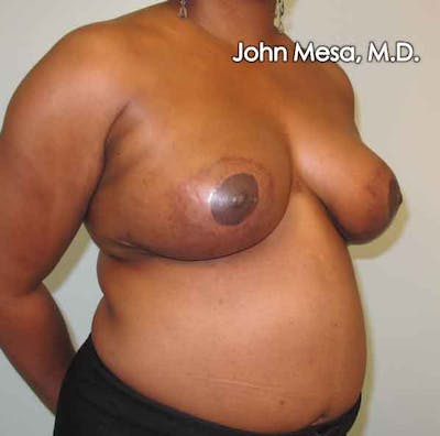 Breast Reduction Gallery - Patient 6371462 - Image 2
