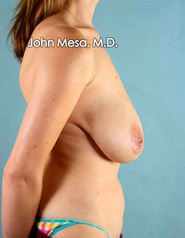 Breast Lift Gallery - Patient 6371461 - Image 5