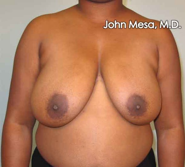 Breast Reduction Gallery - Patient 6371462 - Image 3