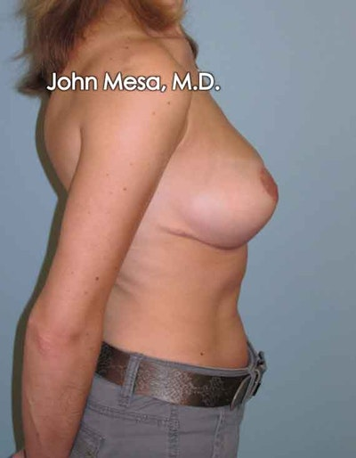 Breast Lift Gallery - Patient 6371461 - Image 6